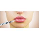 clínica de preenchimento de lábios com ácido hialurônico Morumbi