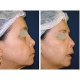 clínica de preenchimento de nariz com ácido hialurônico Morumbi