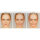 clínica de preenchimento de rugas com ácido polilático Brooklin