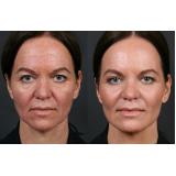 clínica de radiofrequência para acne Morumbi