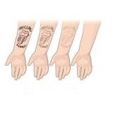 clínica de remoção de tatuagem em são paulo Jardim Atibaia