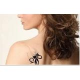 clínica de remoção de tatuagem Jardim das Rosas