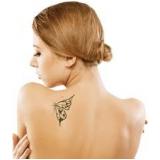 clínica de tratamento para remoção de tatuagens Vila Beatriz