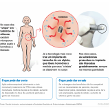 clínica para implante de hormônio Jardim Europa