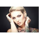 clínica para remover tatuagem Campo Grande