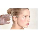 clínica para tratamento de manchas no rosto Itaim Paulista