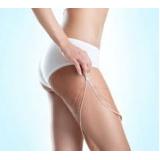 Clínica Estética para Tratamento de Celulite