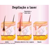 depilação a laser preço Vila Parque São Jorge