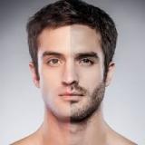 depilação definitiva masculina Vila Olímpia