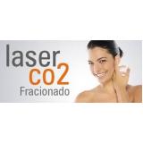 laser co2 fracionado para cicatrizes de acne Saúde