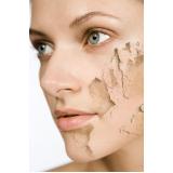 laser co2 fracionado para manchas de acne na Cidade Dutra
