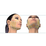laser facial M'Boi Mirim