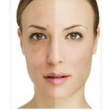 laser para manchas no rosto preço Sítio Boa Vista