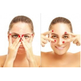laser para manchas no rosto Vila Nova Conceição