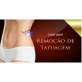 laser para retirar tatuagem Anália Franco