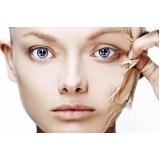 laser para rejuvenescimento da face