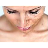 laser rosto rejuvenescimento
