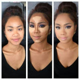 tratamento de lifting facial