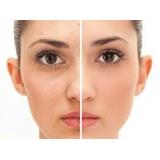 marcas de acne tratamento Jardim dos Jacarandás