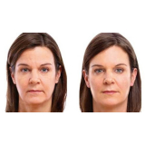 rejuvenescimento facial md codes