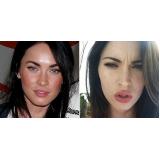 orçamento de botox para aumentar os lábios Vila Anglo Brasileira
