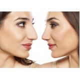 orçamento de botox para empinar o nariz Jardim Viana