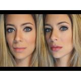 orçamento de botox para preenchimento facial Boaçava