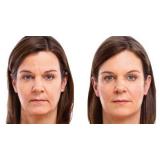 orçamento de md codes preenchimento facial Bixiga