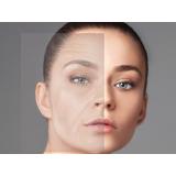 orçamento de rejuvenescimento facial md codes M'Boi Mirim