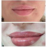 preenchimento com ácido hialurônico lábios Vila Madalena