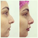 preenchimento de nariz com ácido hialurônico Vila Ida