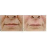 preenchimentos com ácido hialurônico para bigode chinês Mooca
