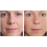 preenchimento com ácido hialurônico bigode chinês