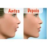 preenchimento com ácido hialurônico lábios