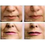 preenchimento com ácido hialurônico na boca