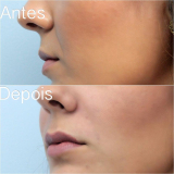 preenchimento com ácido hialurônico no nariz