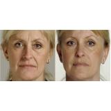 preenchimento com ácido hialurônico para bigode chinês