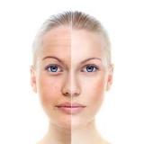 procedimento de laser facial Sacomã