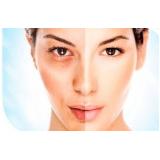procedimento de laser para tirar manchas do rosto Jardim São Luiz