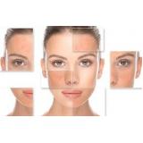 procedimento de laser rejuvenescimento rosto Capão Redondo