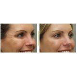 quanto custa botox para área dos olhos Jardim Lusitânia