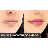 quanto custa botox para aumentar os lábios Alto de Pinheiros