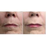 quanto custa botox para bigode chinês Mooca