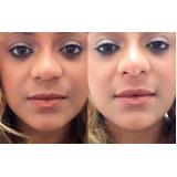 quanto custa botox para empinar o nariz Vila Mariana