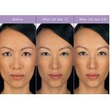 quanto custa clínica de estética para aplicação de botox Brooklin Novo