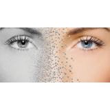 quanto custa eliminar manchas no rosto Higienópolis