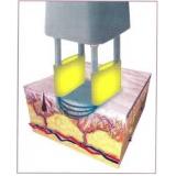 quanto custa laser co2 fracionado para celulite Jardim Novo Mundo