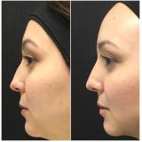 quanto custa preenchimento de nariz com ácido hialurônico Penha
