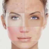 quanto custa tratamento a laser para marcas de acne Jabaquara