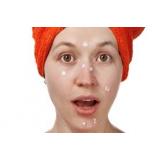 quanto custa tratamento de manchas de acne Jardim Europa
